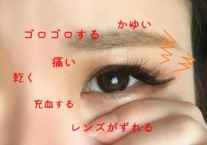 目の違和感